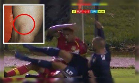 """Herrera: """"Prefiero que me metan un puñete antes de que me muerdan"""""""